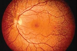 Software para diagnosticar enfermedades a través de la retina